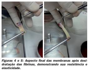 fig45 - JHS Biomateriais