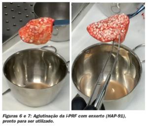 fig67 - JHS Biomateriais