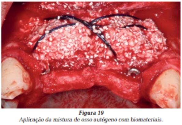ARTIGO: Regeneração óssea guiada e instalação simultânea de implantes utilizando a técnica do PDS II.